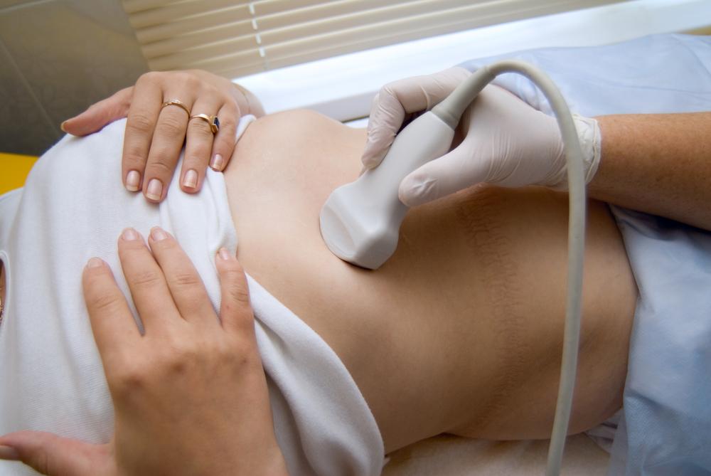 Abdominal ultrasound exam of a woman shutterstock_36231421[1]
