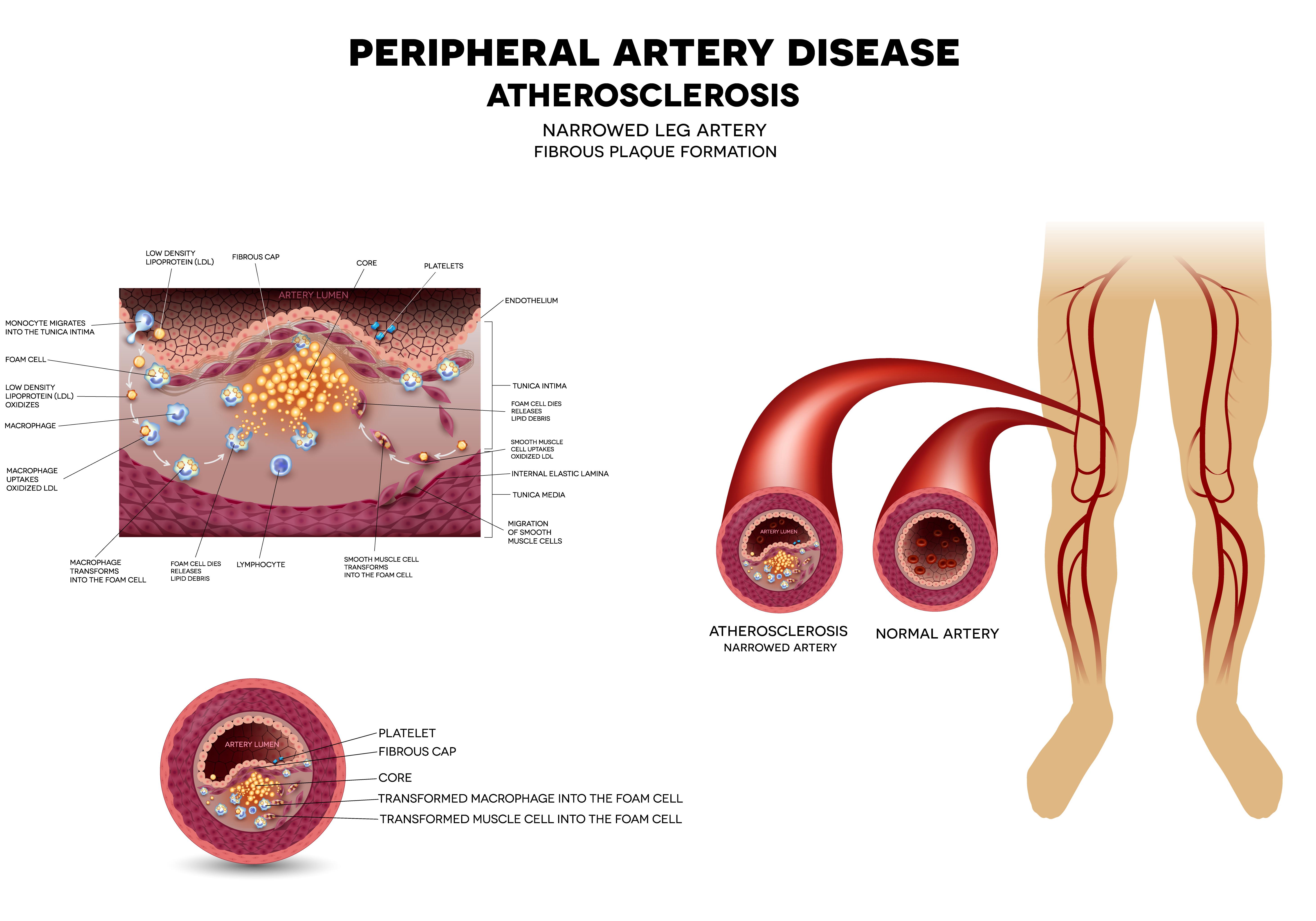 arterial-leg-disease
