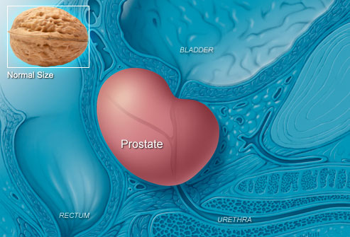 enlarrged-prostate